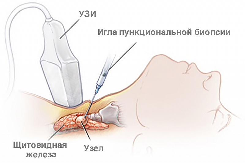 Зачем выполняют биопсию узла щитовидной железы? Биопсию выполняют для того, чтобы получить клетки из той области щитовидной железы, в которой по результатам УЗИ щитовидной железы обнаружены патологические изменения (киста, уплотнение, очаговое образование и так далее) и затем выполнить цитологическое исследование этих клеток. Результаты цитологического исследования клеток щитовидной железы в совокупности с клинической картиной и результатами соответствующего эндокринологического лабораторного обследования позволяют врачу-эндокринологу установить правильный диагноз и назначить эффективное лечение. Несмотря на относительную безопасность тонкоигольная аспирационная биопсия узла щитовидной железы имеет свои показания и ряд противопоказаний. В первую очередь биопсия показана тем пациентам, у которых диаметр одного узла или нескольких узлов в щитовидной железе превышает 10 мм (1 см). Показания к биопсии узла щитовидной железы определяет врач эндокринолог. Манипуляцию «биопсия узла щитовидной железы» выполняет врач хирург клиники ЭКСКЛЮЗИВ под визуальным контролем с помощью ультразвука (УЗ). Именно такая методика выполнения манипуляции позволяет врачу хирургу объективно оценить размеры, форму и структуру щитовидной железы, выбрать наиболее вероятный участок патологического процесса в щитовидной железе и безошибочно попасть тонкой пункционной иглой в нужную (измененную) зону щитовидной железы, не повредив при этом рядом расположенные органы шеи, крупные нервы и кровеносные сосуды. После аспирации (всасывания) через иглу в шприц клеток и жидкого содержимого из патологически измененного узла, полученный клеточный материал наносят на специальное лабораторное стекло, фиксируют и направляют в лабораторию, где проводят цитологическое исследование аспирата узла щитовидной железы. Результаты цитологического исследования аспирата узла щитовидной железы позволяют дифференцировать рак щитовидной железы от доброкачественной опухоли или коллоидной кисты с вероятностью не ниже 90-95%. Эт