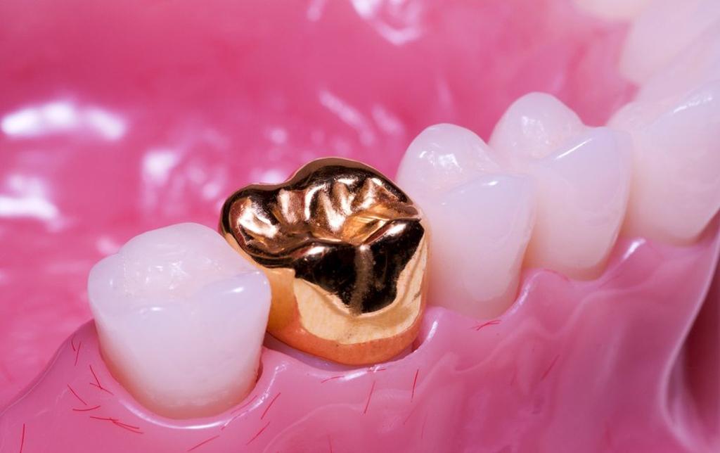 Золотая зубная коронка