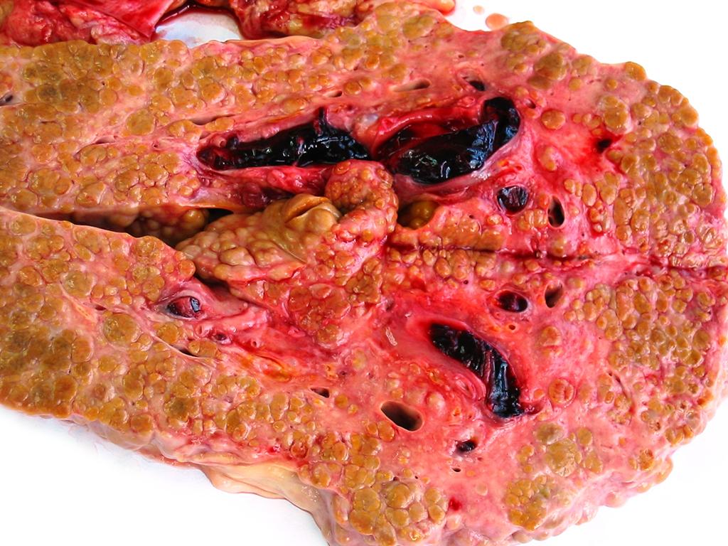 Крупноузловой цирроз печени