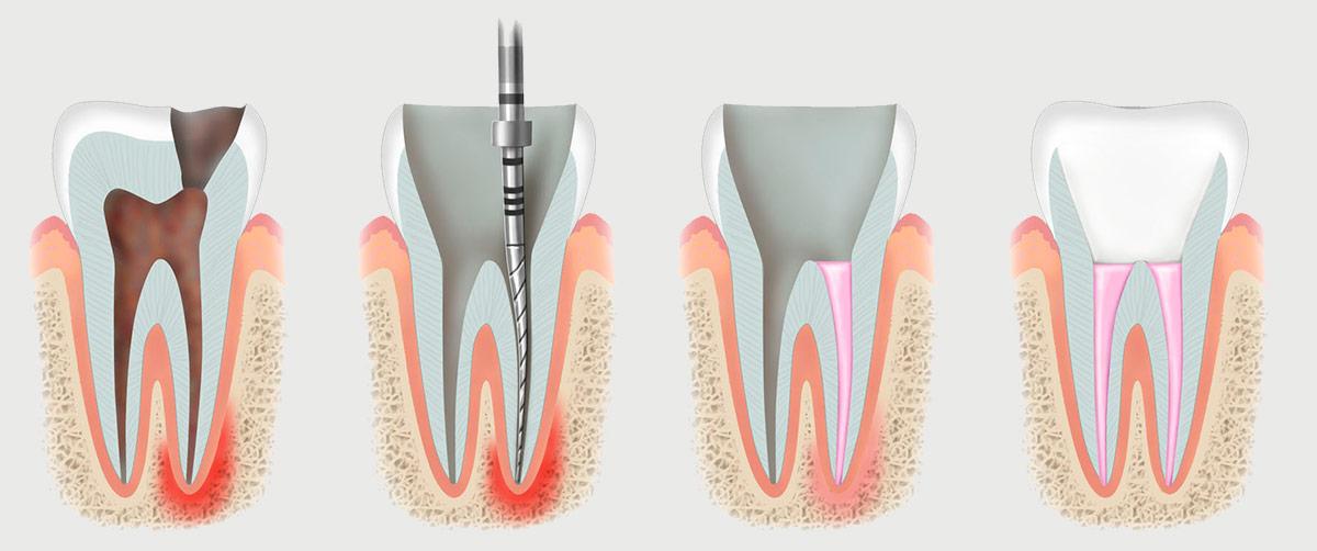 Лечение зубного канала
