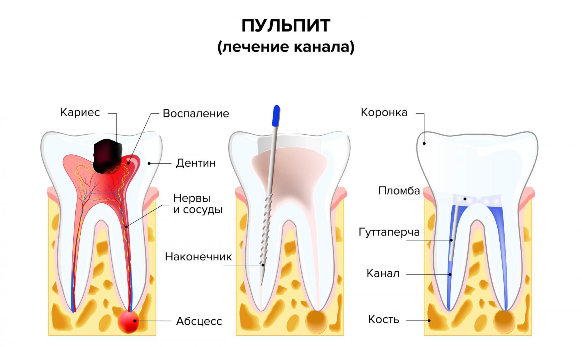 Лечение острого пульпита