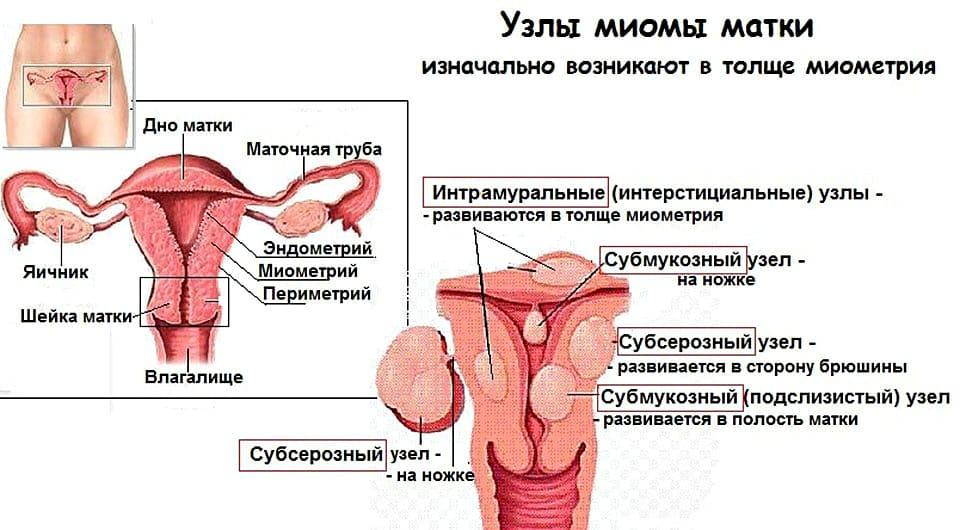 Миоматозные узлы