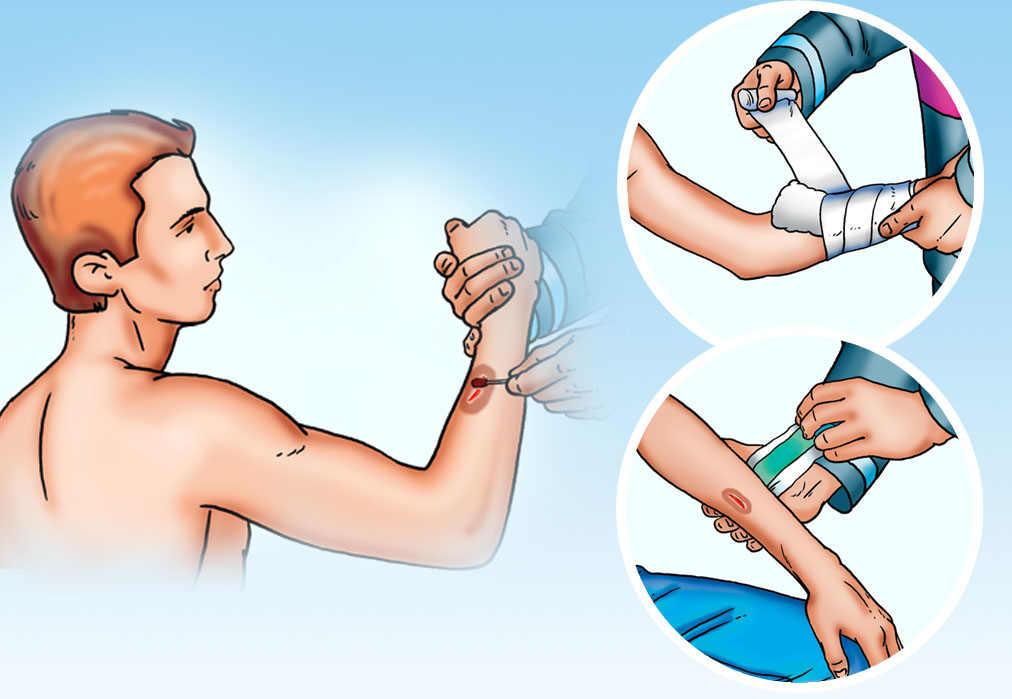Описание этапов процесса хирургической обработки раны