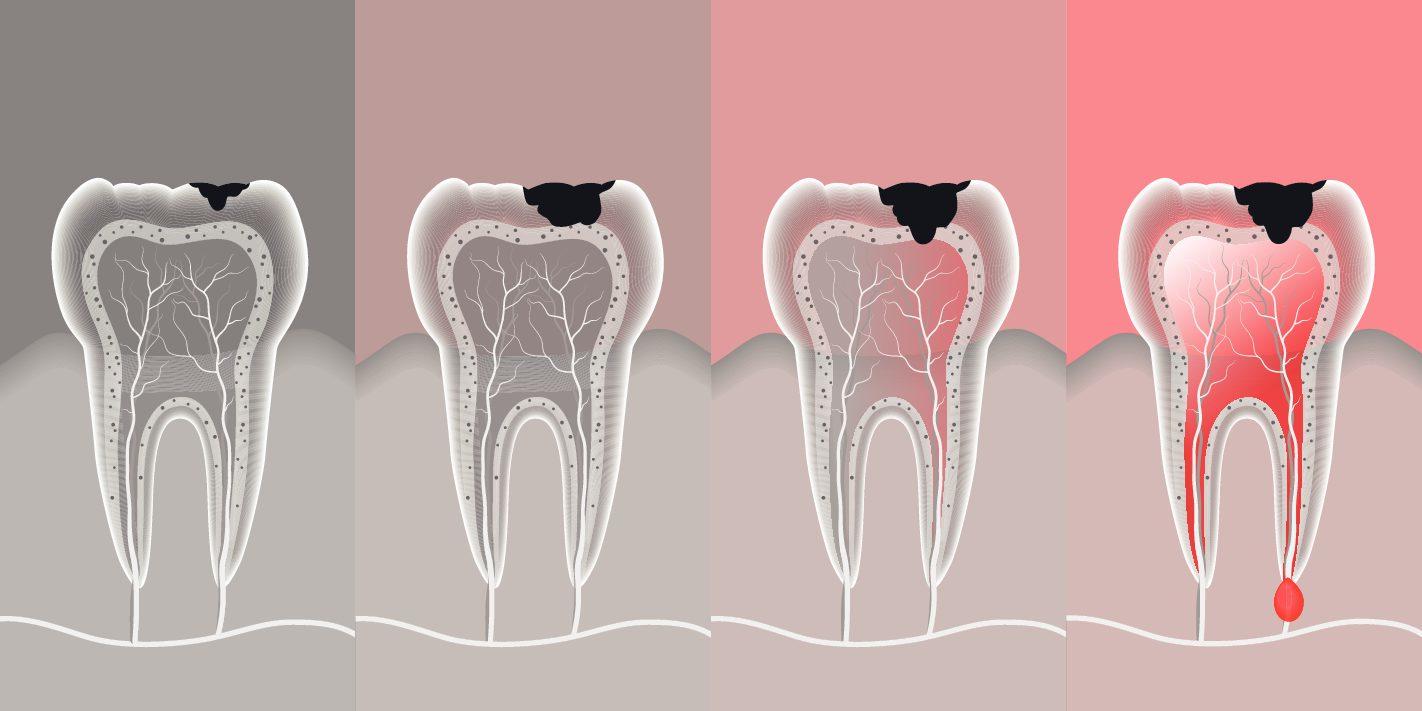 Причины появления кисты зуба