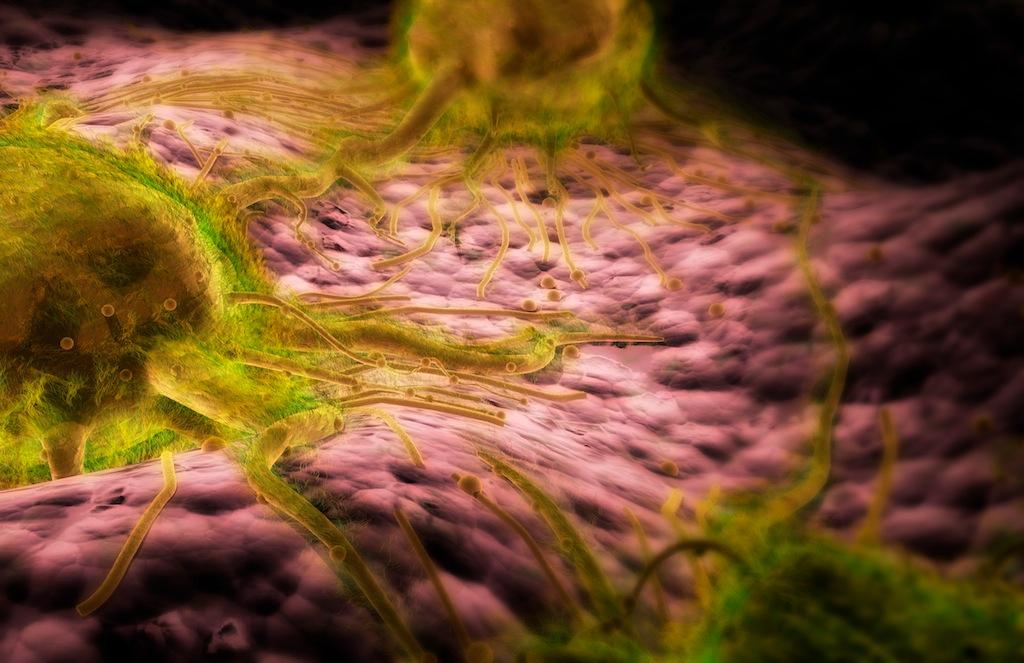 Раковые клетки, синтезирующие КЭА/РЭА