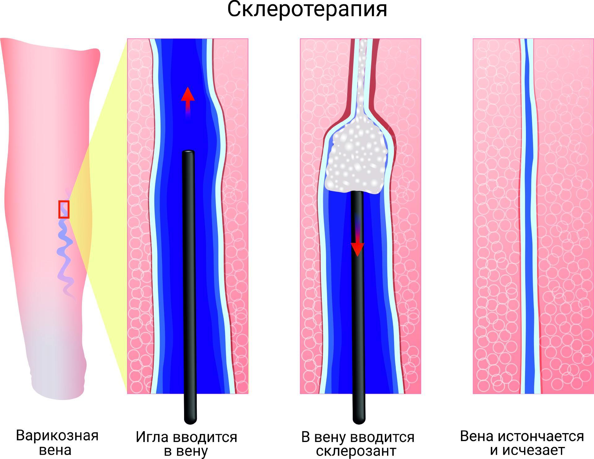 Склеротерапия вен