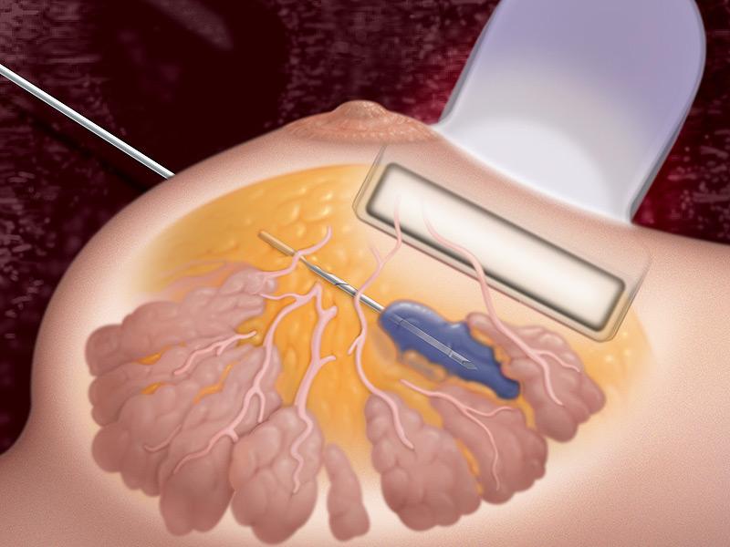 Тонкоигольная биопсия молочной железы
