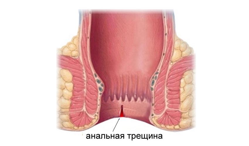 Трещины в заднем проходе