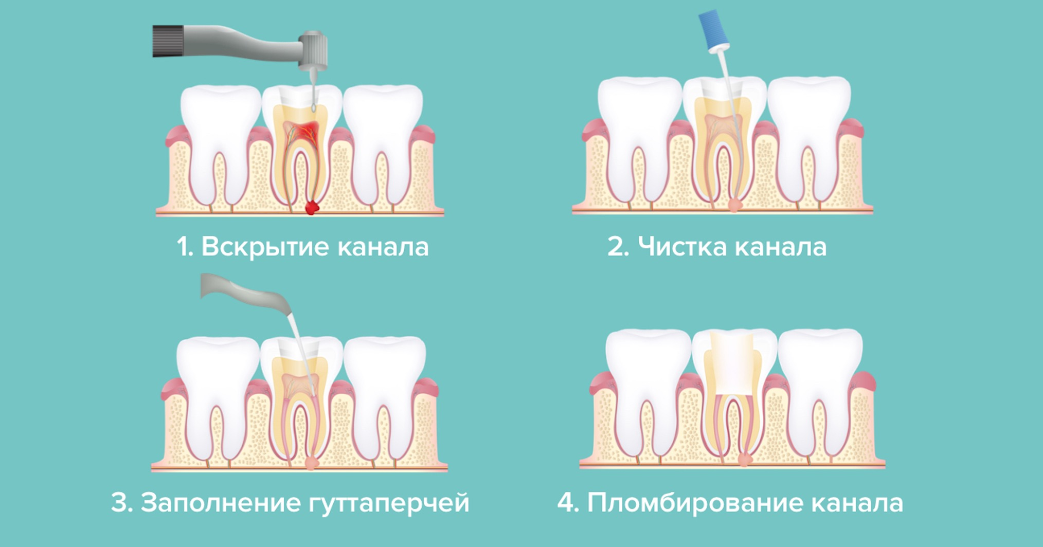 Этапы лечения каналов зуба