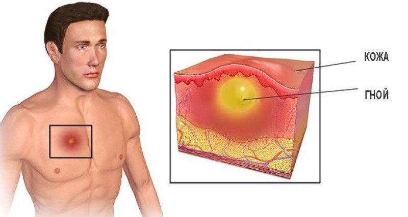 абсцесс мягких тканей