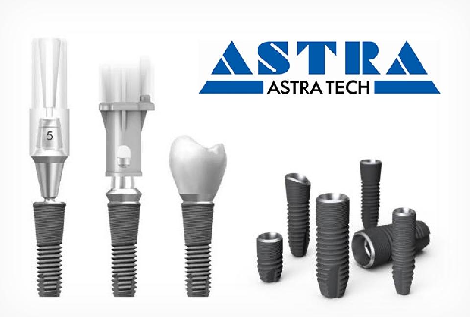 имплантаты Astra Tech