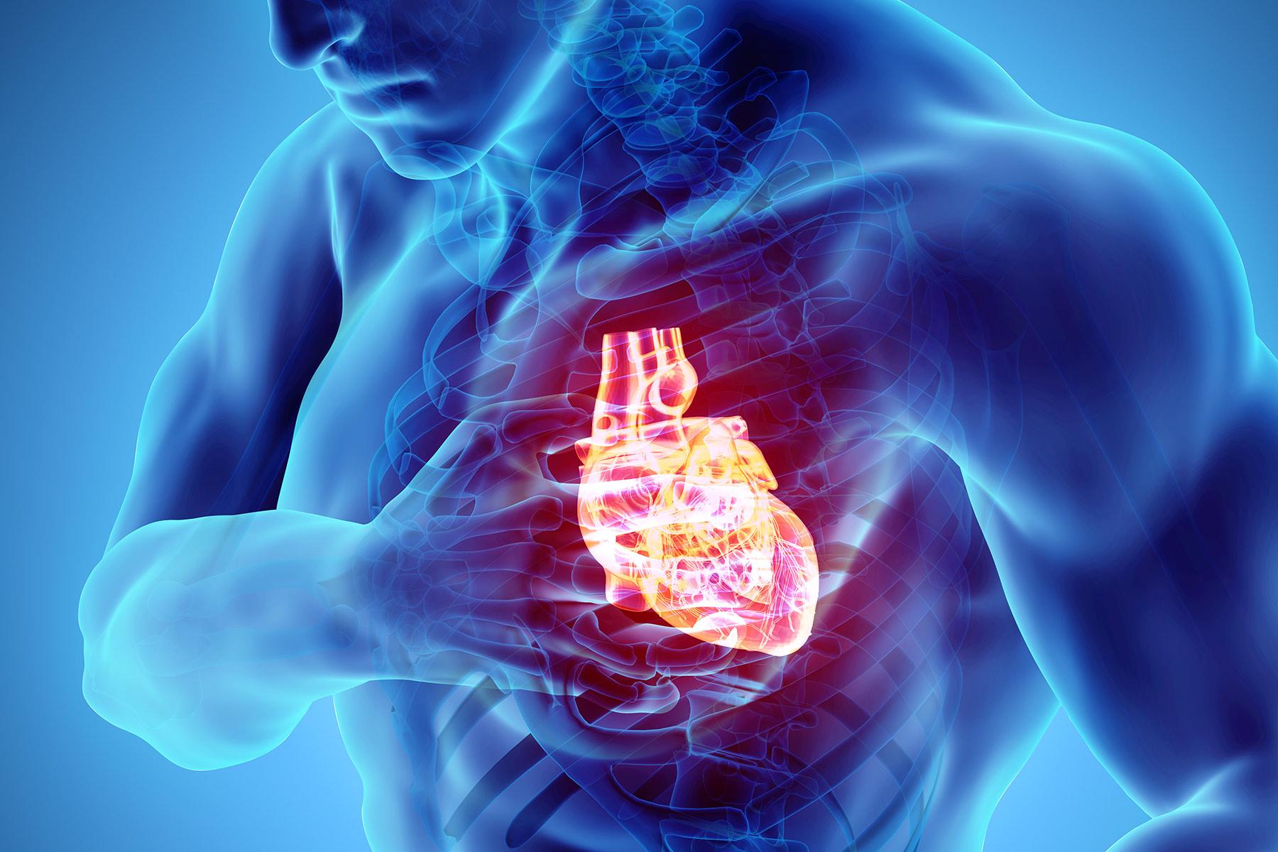 кардиосклероз