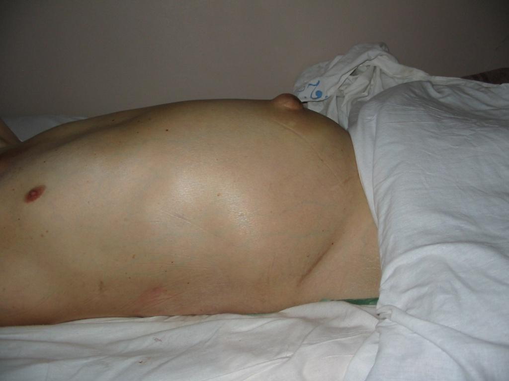 ненапряженный асцит у пациента с циррозом печени при хроническом гепатите С