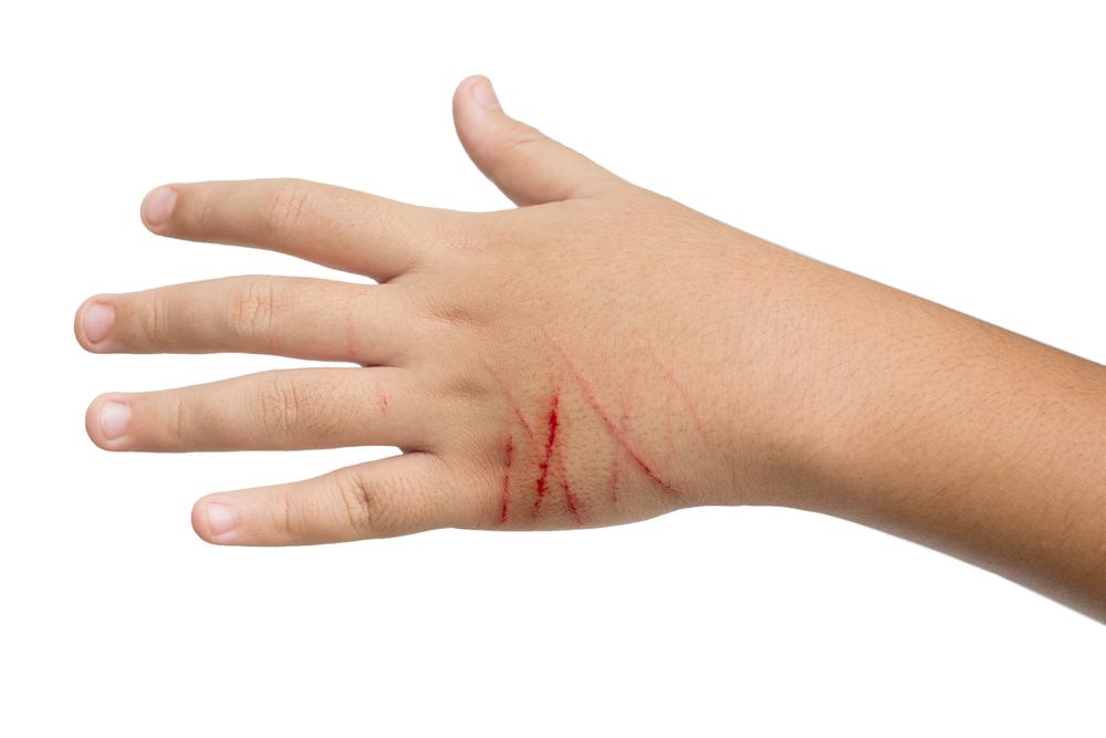 порезы кожи