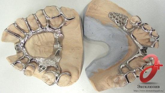 Виды шинирующих бюгельных протезов