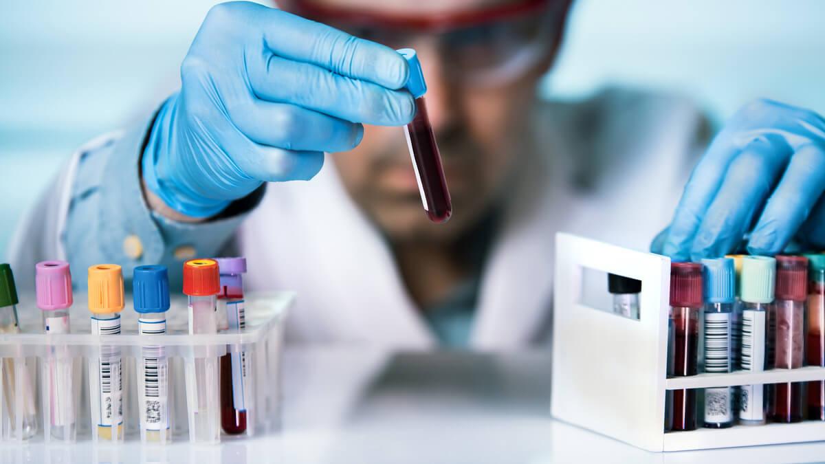 экспресс-анализ крови на РЭА