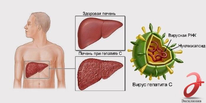Гепатит С и осложнения