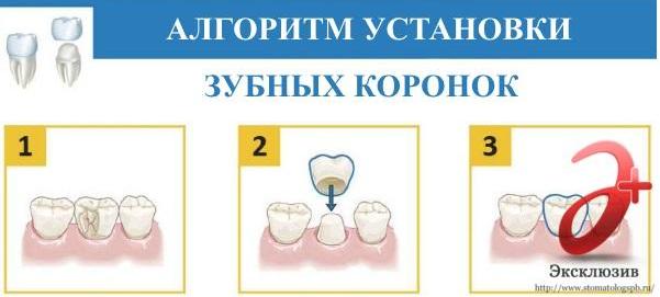 Как устанавливается коронка на зуб