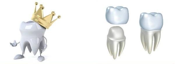 Зубная коронка