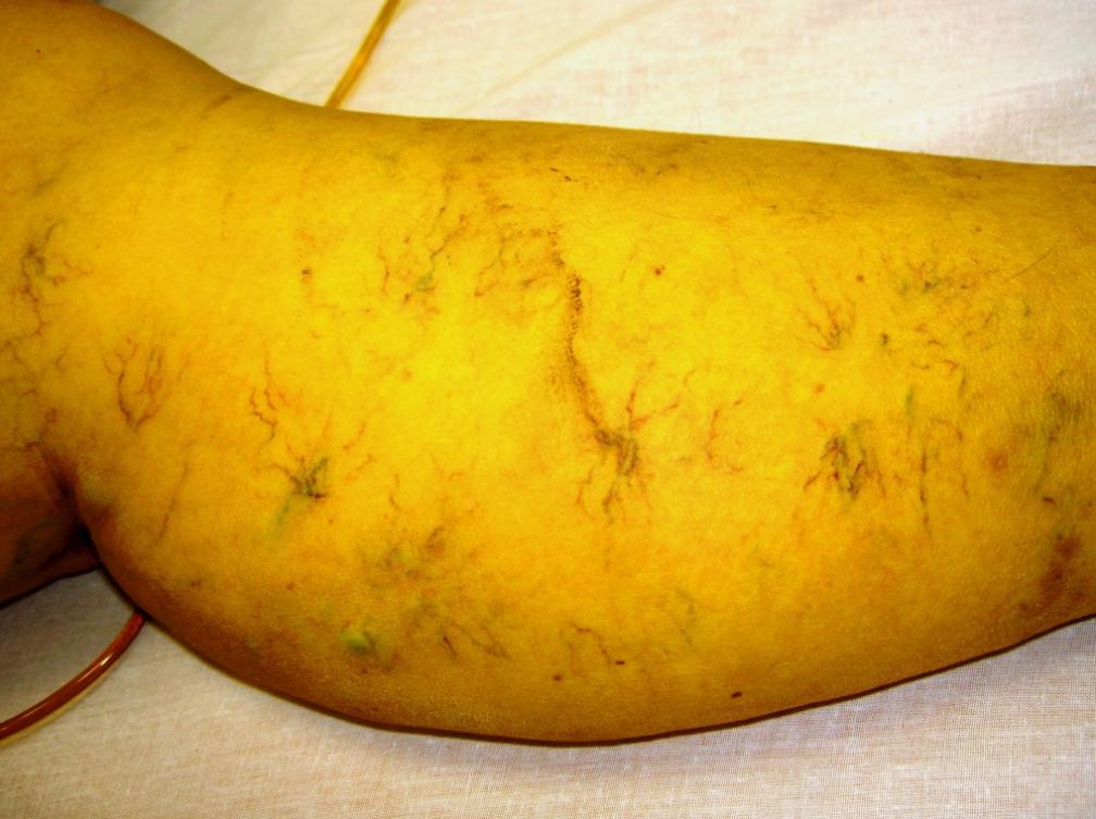 Специфические изменения мягких тканей левой голени