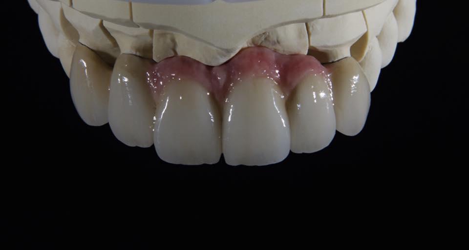 Мост из металлокерамики на челюсти