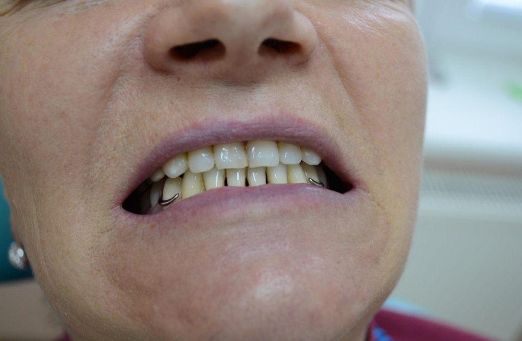 Фотография улыбки с бюгельным протезом