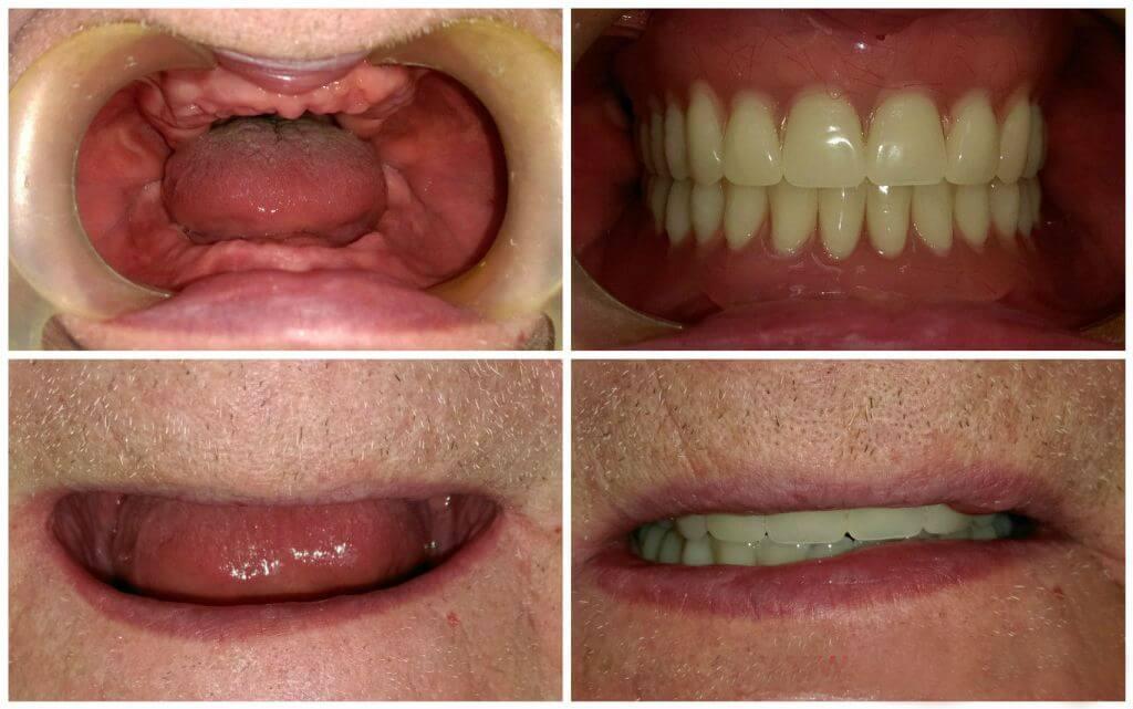 протезирование при полном отсутствии зубов ДО и ПОСЛЕ