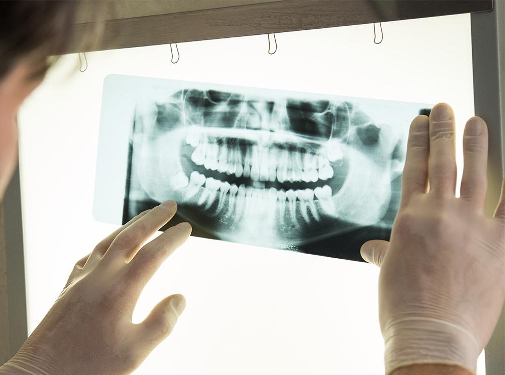 Ортопантомограмма зубов
