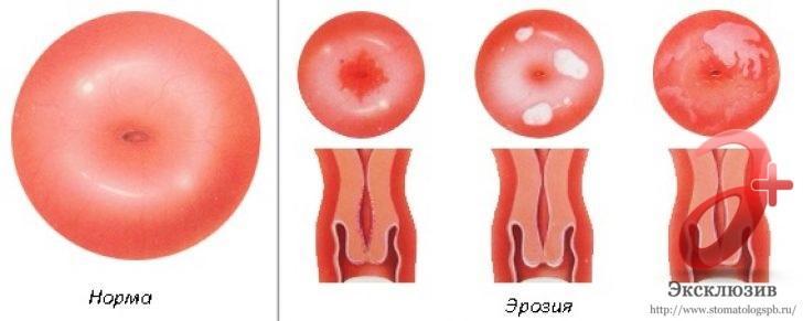 Шейка матки в здоровос состоянии и с эрозией