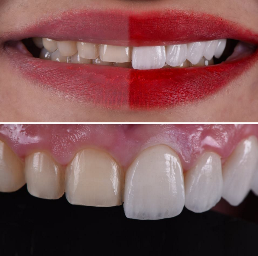 Керамические виниры на зубах до и ПОСЛЕ