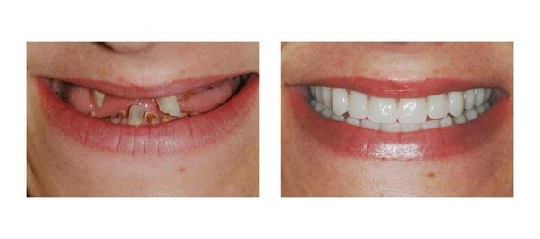 Улыбка до и после имплантации зубов