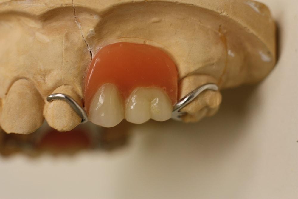 Съемный зубной протез на кламмерах