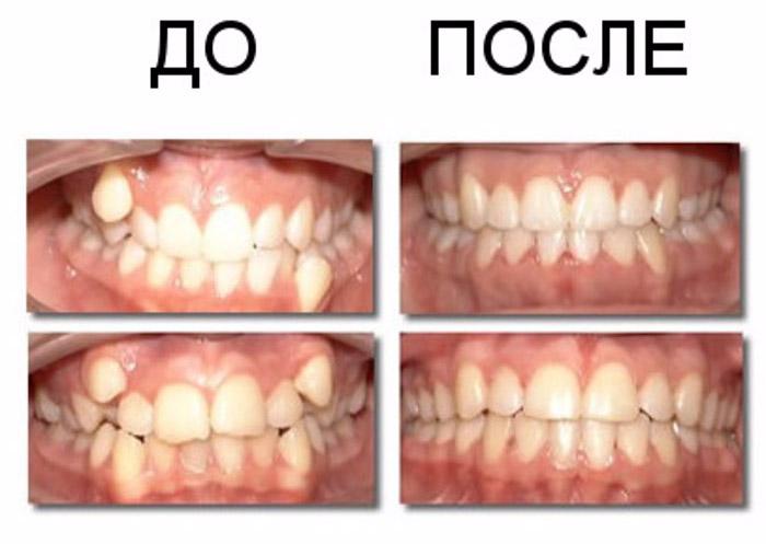 Улыбка до и после брекетов