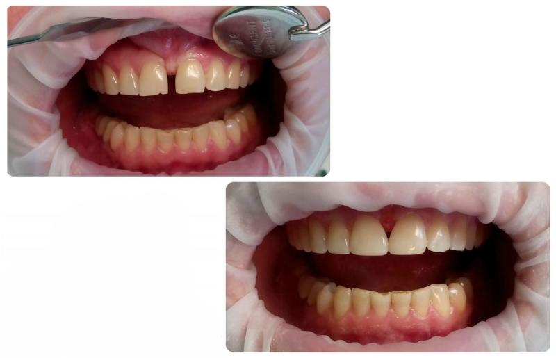 Закрывание щелей на зубах винирами