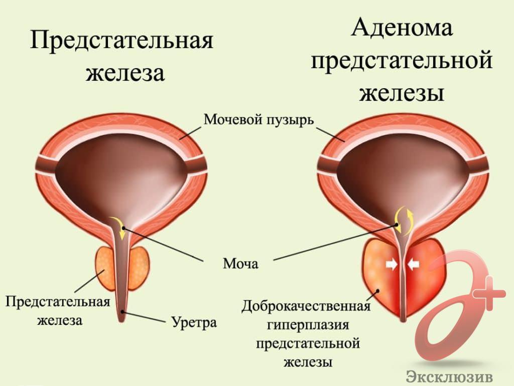Лечение аденомы