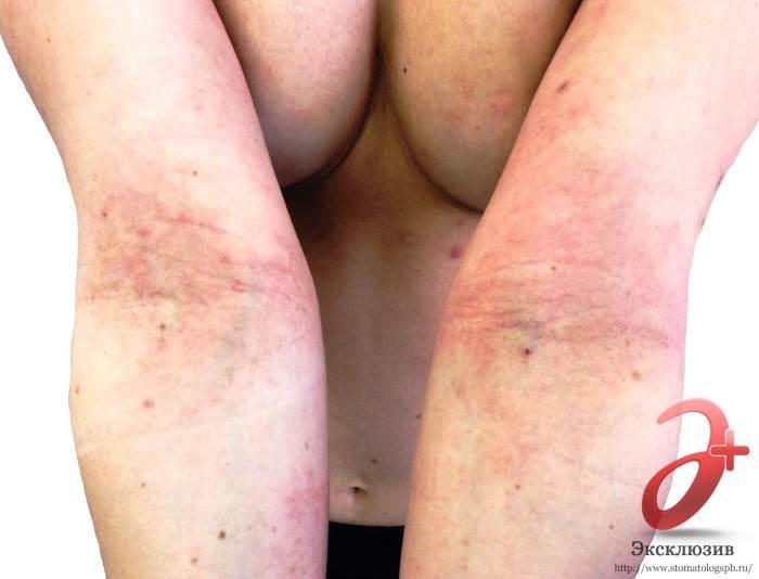 atopicheskii-dermatit-u-vzroslih