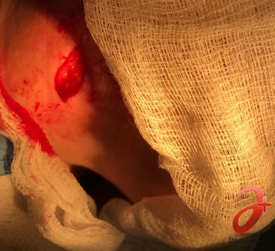 Случай №1 - Иссечение базалиомы шеи под местной анестезией