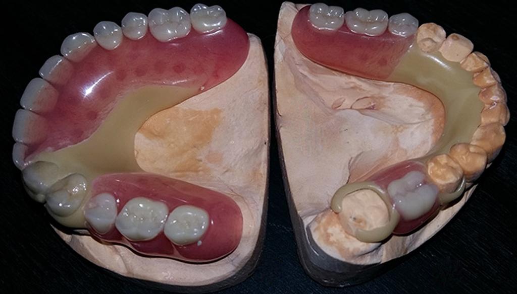 Бюгельный протезы