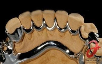 Шинирующий бюгельный протез на нижнюю челюсть