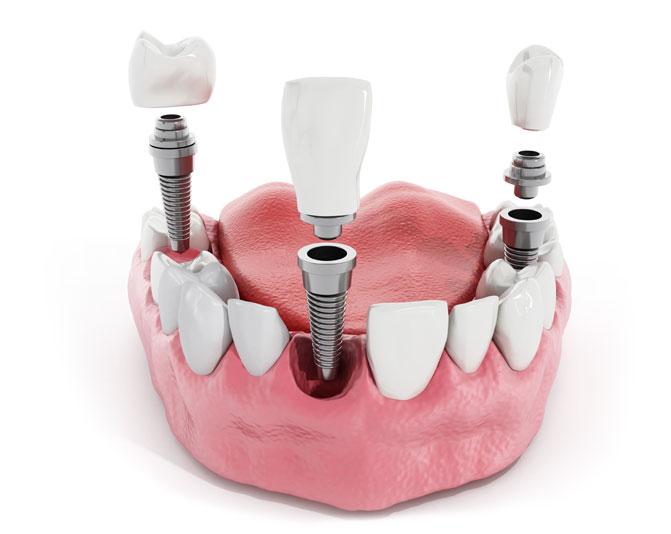 Вставить зубы с помощью имплантов