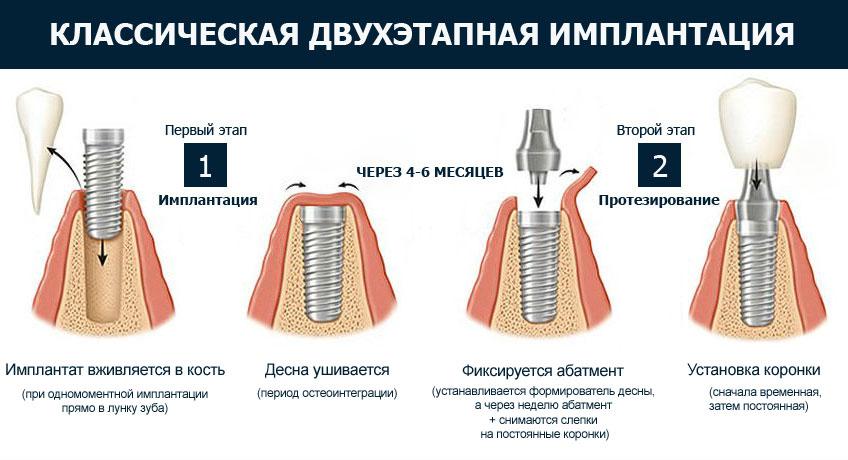 имплантация зубов в два этапа