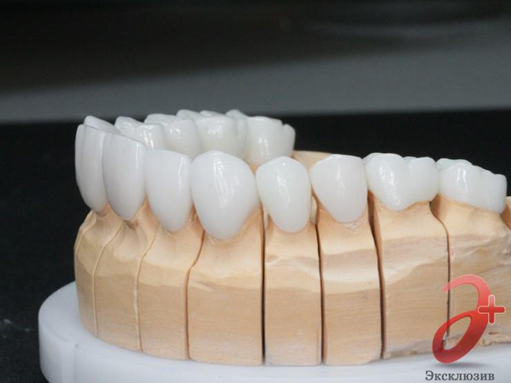 Безметалловые протезы E-max