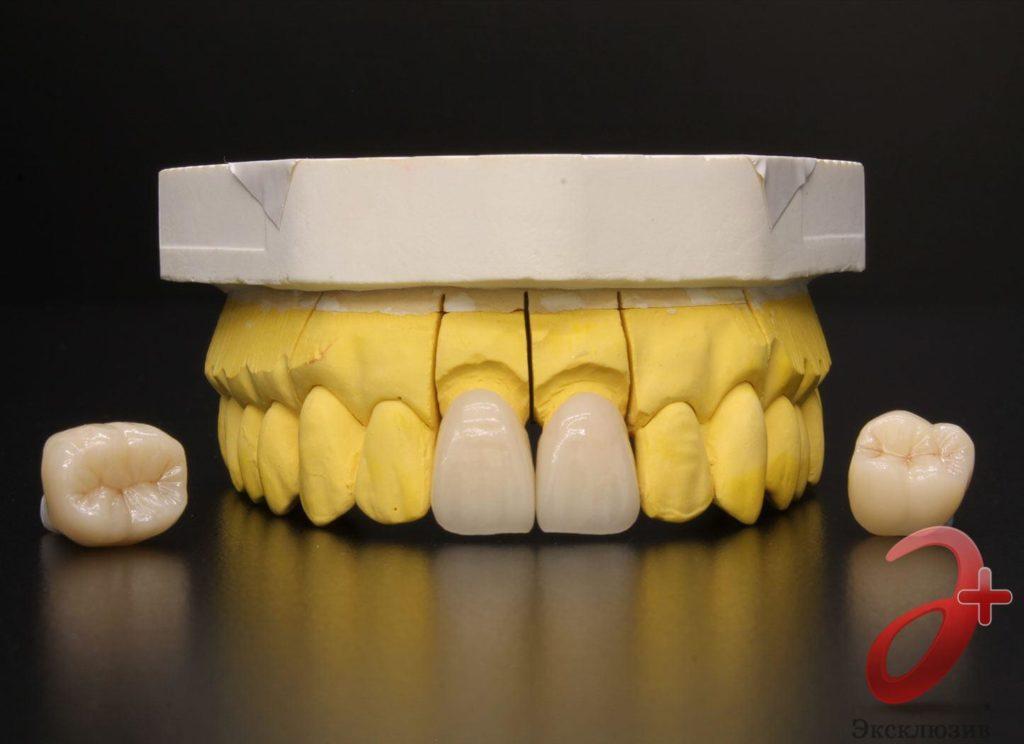 Безметалловые коронки E-MAx на передних зубах