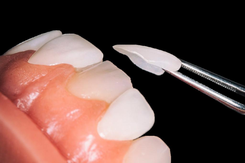 Керамический винир на 1 зуб