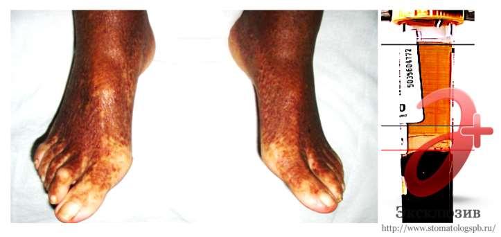 криоглобулины на коже ног