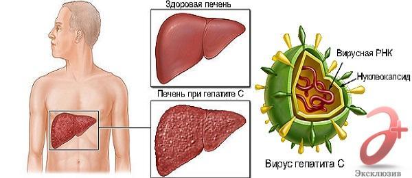 Здоровая печень и печень при гепатите С