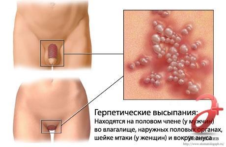 Генитальный герпес у мужчин и женщин