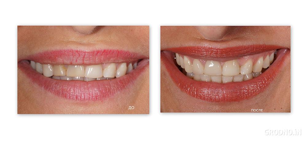 Композитные виниры на зубы фото до и после