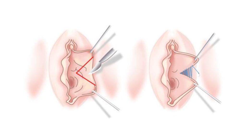 Лабиопластика половых губ
