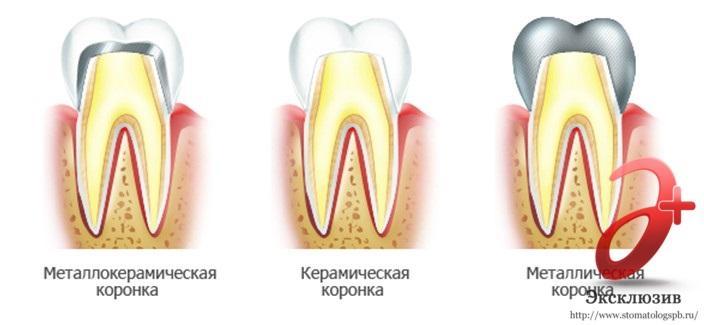Виды коронок на зубы - протезирование